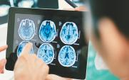 Brain MRI scan