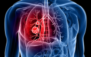 lung cancer concept pic