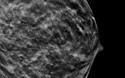 3-D breast scan image