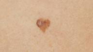 heart-shaped lesion