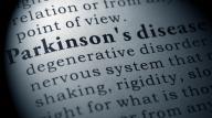 parkinson's concept