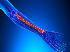 fractures bones