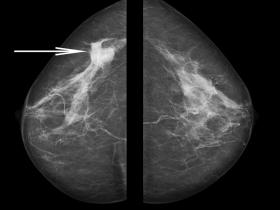 mammogram showing cancer