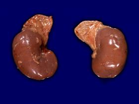 Kidneys with adrenal glands