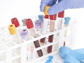 tibes of blood awaiing analysis