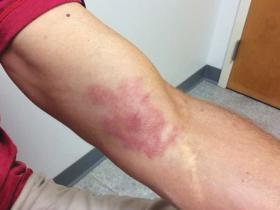 Arm lesion