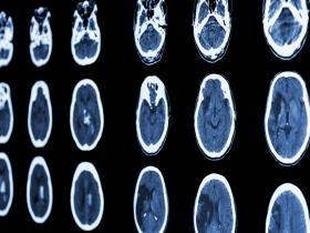 stroke - brain MRI