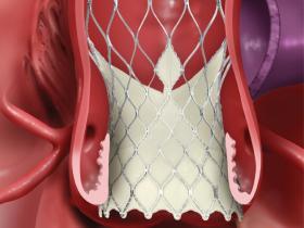 Medtronic Evolut R valve