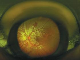 Purtscher's retinopathy