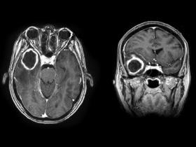 figure 1a_mri brain