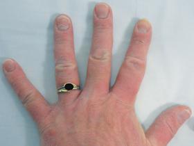 Dermatitis rings