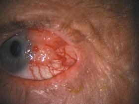 ocular surface squamous neoplasia ossn