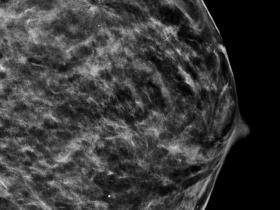3D breast scan image