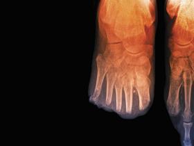 Toe_amputations_in_diabetes_X-ray