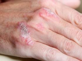 hand with psoriasis plaques