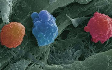 Myeloproliferative