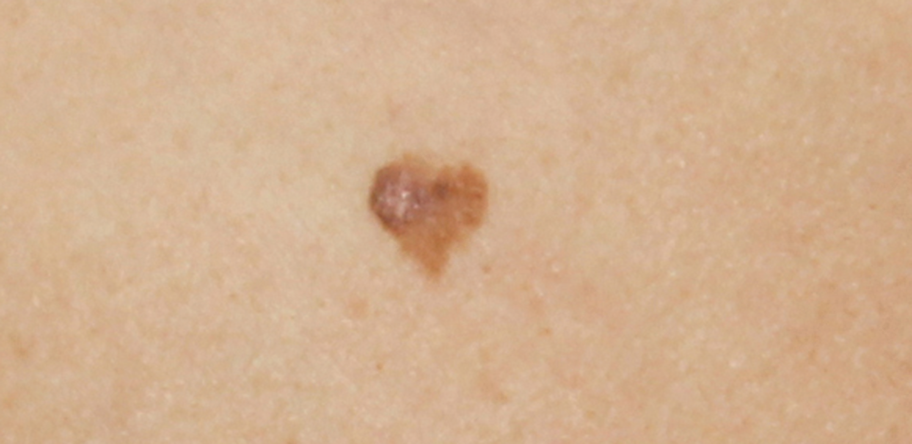 heart-shaped lesion