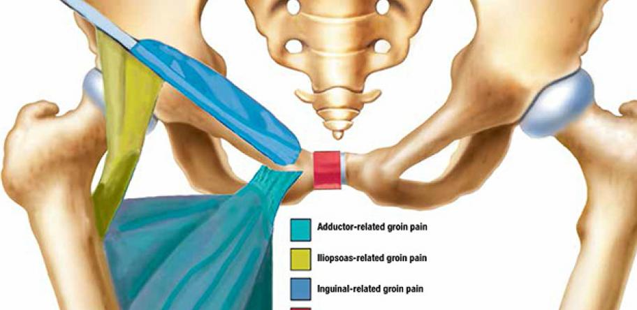 Case Report: Getting to grips with groin pain | How to Treat
