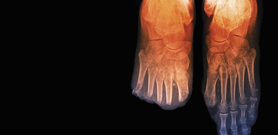 Toe_amputations_in_diabetes_X-ray