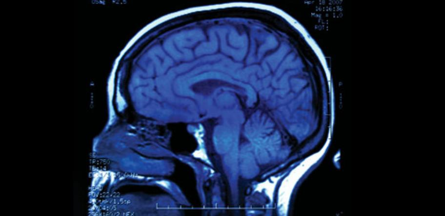 Procedures are used to identify the source of seizures in epilepsy