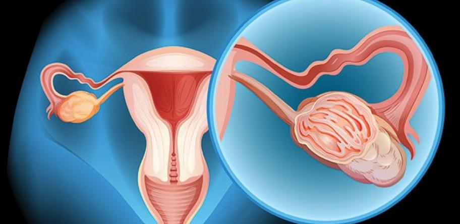 Diagram showing demale reproductive organs highlighting an ovary