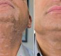 vitiligo thumb